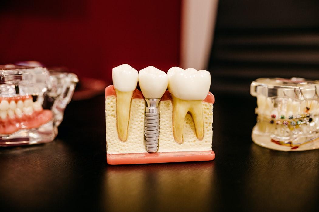 Ką reikia žinoti, ruošiantis dantų protezavimui?
